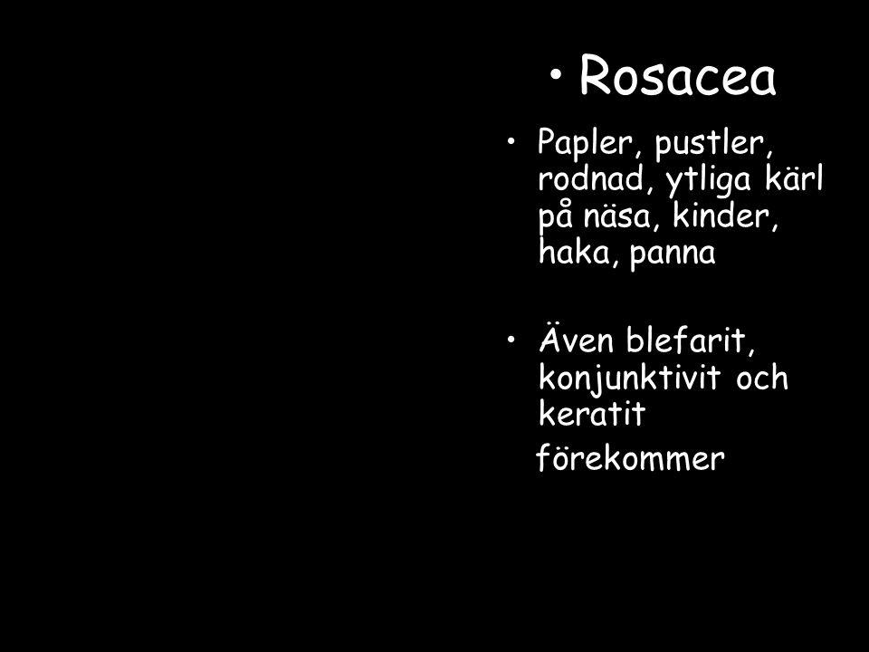 Papler, pustler, rodnad, ytliga kärl på näsa, kinder, haka, panna Även blefarit, konjunktivit och keratit förekommer Rosacea