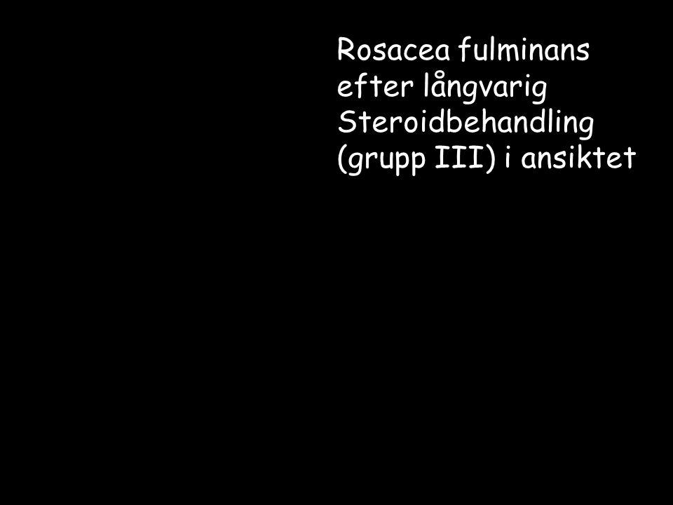 Rosacea-differentialdiagnos Akne (komedoner) Perioral dermatit (en specialform av rosacea???) Kutan lupus erythematosus (ilsken fjärilsrodnad på kinderna, inga pustler