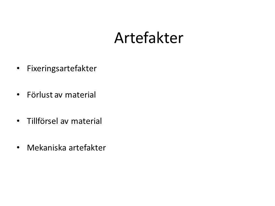 Artefakter Fixeringsartefakter Förlust av material Tillförsel av material Mekaniska artefakter