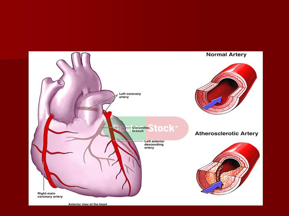 Är angina och angina samma sak.1-kärlsjuka. 1-kärlsjuka.