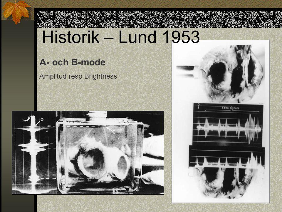 A- och B-mode Amplitud resp Brightness Historik – Lund 1953