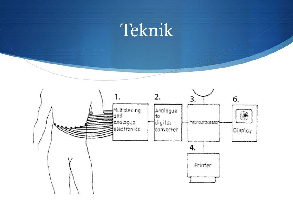  Först fångas upp spänningsskillnader genom elektroderna och sen de analoga signalerna måste omvandlas till digital och sen med hjälp av matematiska ekvationer och laplacetransform ekvation kommer avbilningen av vävnader skaffas och visas sen på en datorskärm.