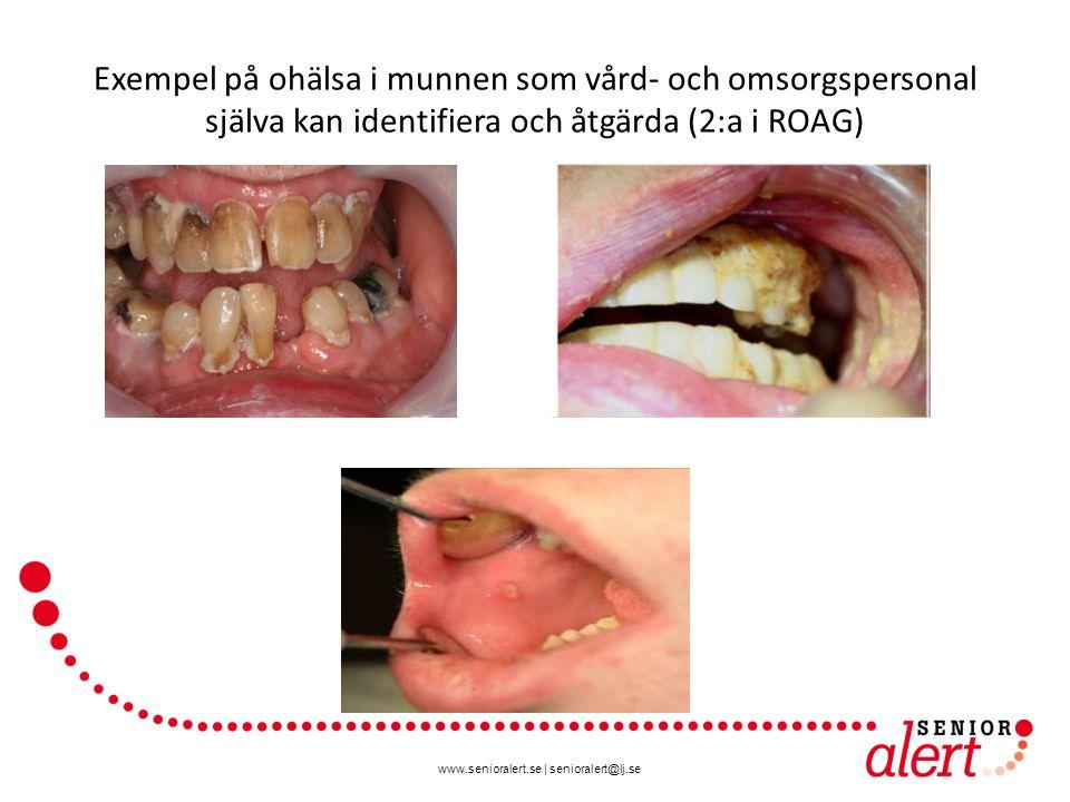 www.senioralert.se   senioralert@lj.se Exempel på ohälsa i munnen som vård- och omsorgspersonal själva kan identifiera och åtgärda (2:a i ROAG)