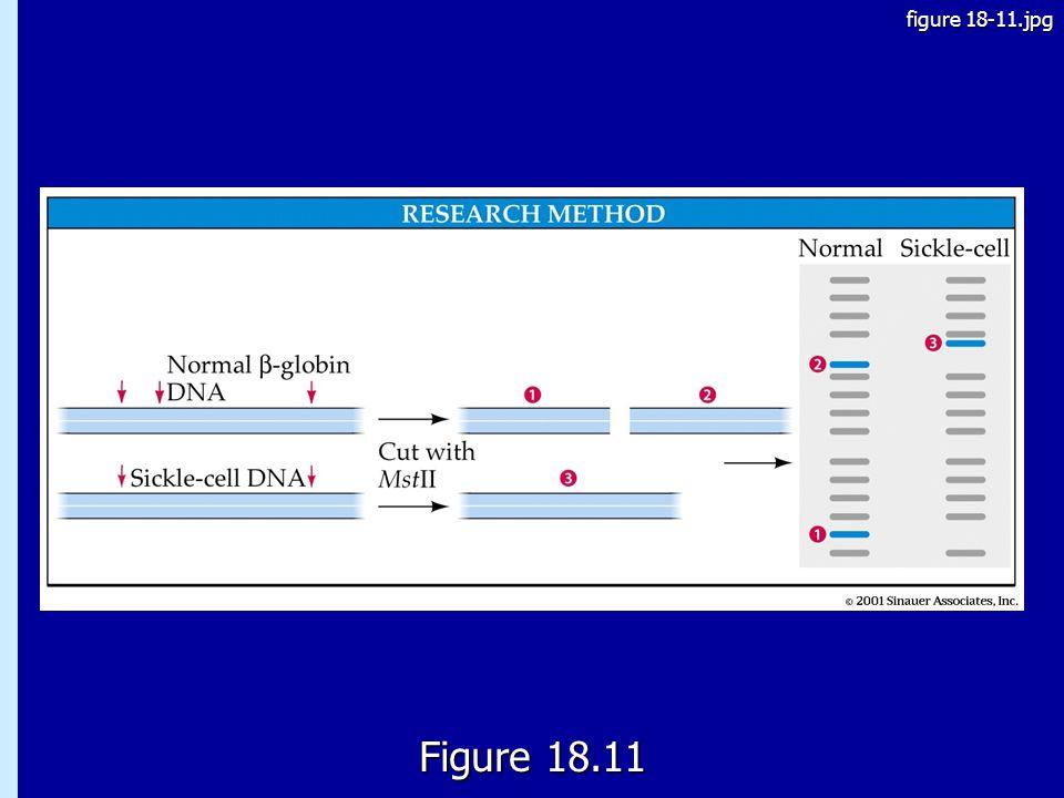 18.11 Figure 18.11 figure 18-11.jpg