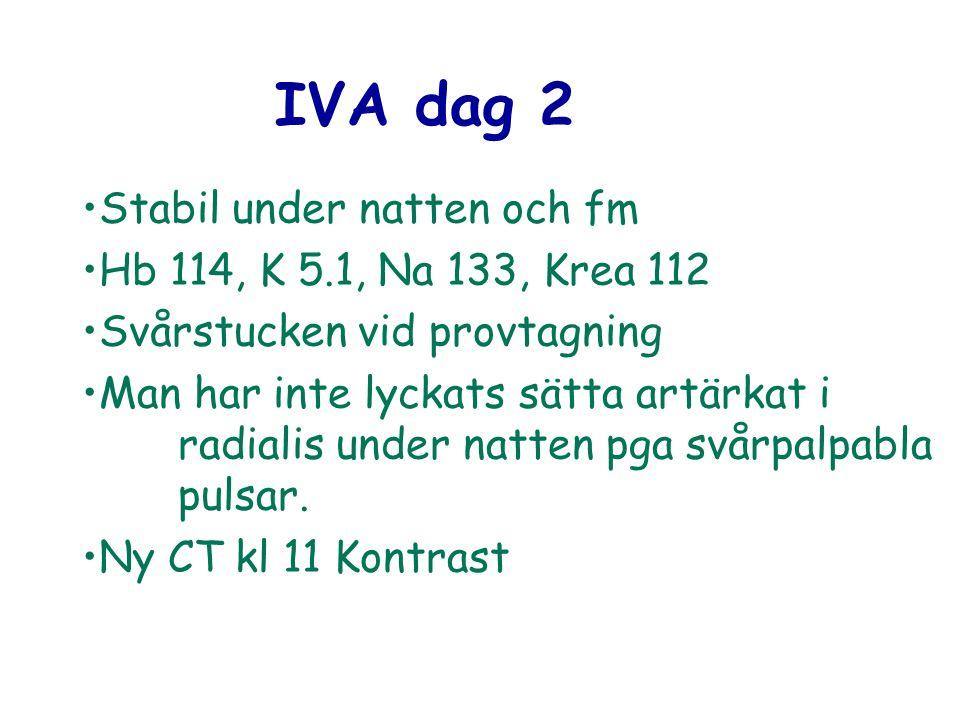 IVA dag 2 Stabil under natten och fm Hb 114, K 5.1, Na 133, Krea 112 Svårstucken vid provtagning Man har inte lyckats sätta artärkat i radialis under