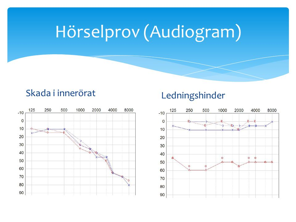 Hörselprov (Audiogram) Skada i innerörat Ledningshinder