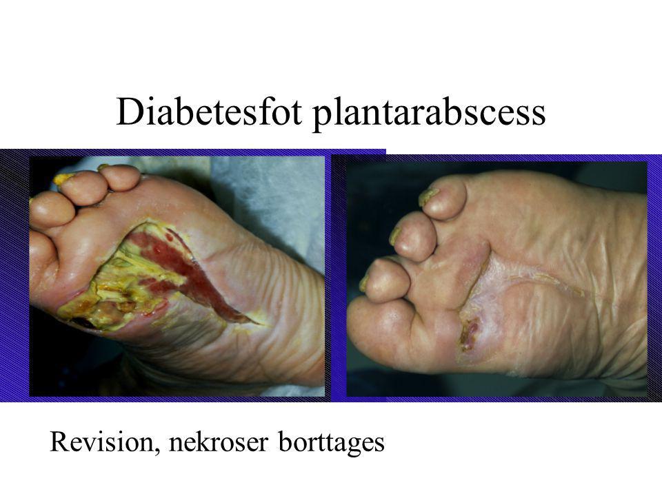 Diabetesfot plantarabscess Revision, nekroser borttages