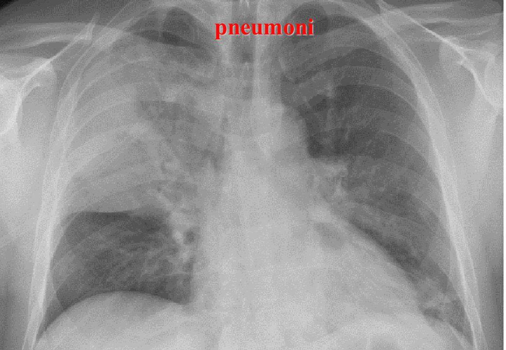 pneumoni