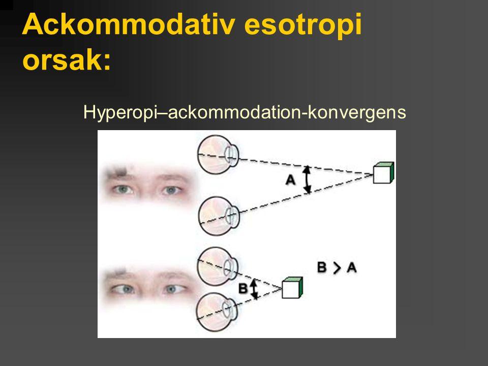 Ackommodativ esotropi orsak: Hyperopi–ackommodation-konvergens