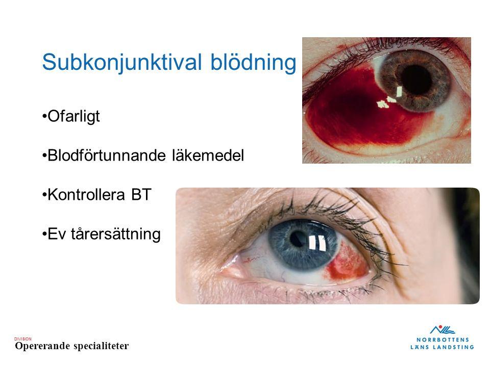 DIVISION Opererande specialiteter Subkonjunktival blödning Ofarligt Blodförtunnande läkemedel Kontrollera BT Ev tårersättning
