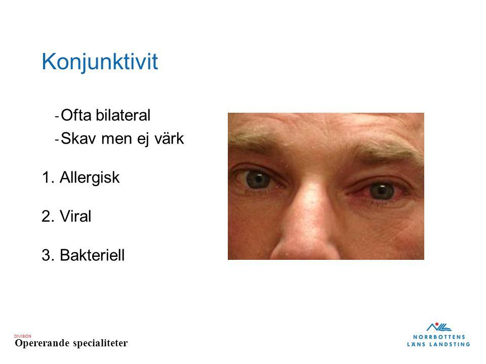 DIVISION Opererande specialiteter Konjunktivit - Ofta bilateral - Skav men ej värk 1.Allergisk 2.Viral 3.Bakteriell