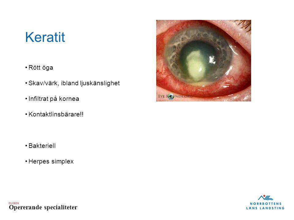 DIVISION Opererande specialiteter Keratit Rött öga Skav/värk, ibland ljuskänslighet Infiltrat på kornea Kontaktlinsbärare!! Bakteriell Herpes simplex