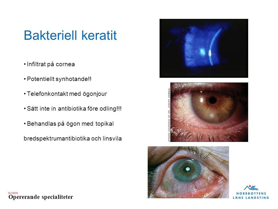 DIVISION Opererande specialiteter Bakteriell keratit Infiltrat på cornea Potentiellt synhotande!! Telefonkontakt med ögonjour Sätt inte in antibiotika