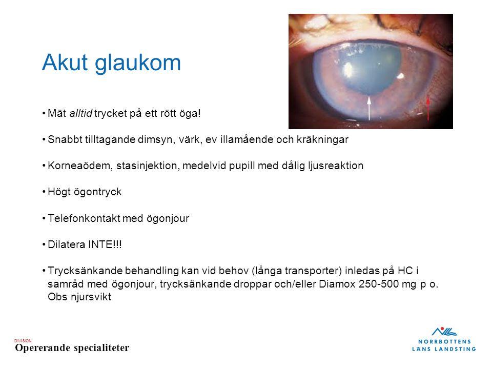 DIVISION Opererande specialiteter Akut glaukom Mät alltid trycket på ett rött öga! Snabbt tilltagande dimsyn, värk, ev illamående och kräkningar Korne