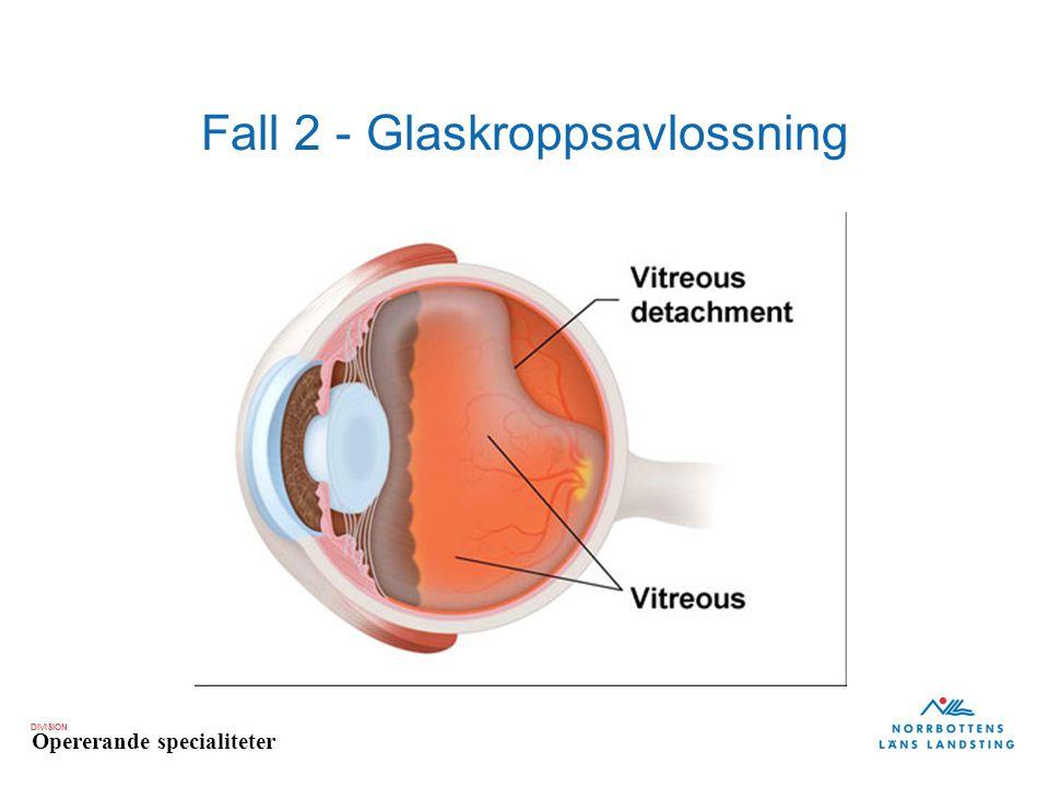 DIVISION Opererande specialiteter Fall 2 - Glaskroppsavlossning