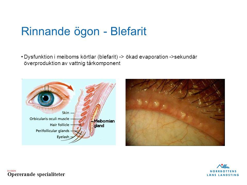 DIVISION Opererande specialiteter Rinnande ögon - Blefarit Dysfunktion i meiboms körtlar (blefarit) -> ökad evaporation ->sekundär överproduktion av v