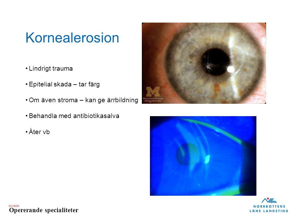 DIVISION Opererande specialiteter Kornealerosion Lindrigt trauma Epitelial skada – tar färg Om även stroma – kan ge ärrbildning Behandla med antibioti