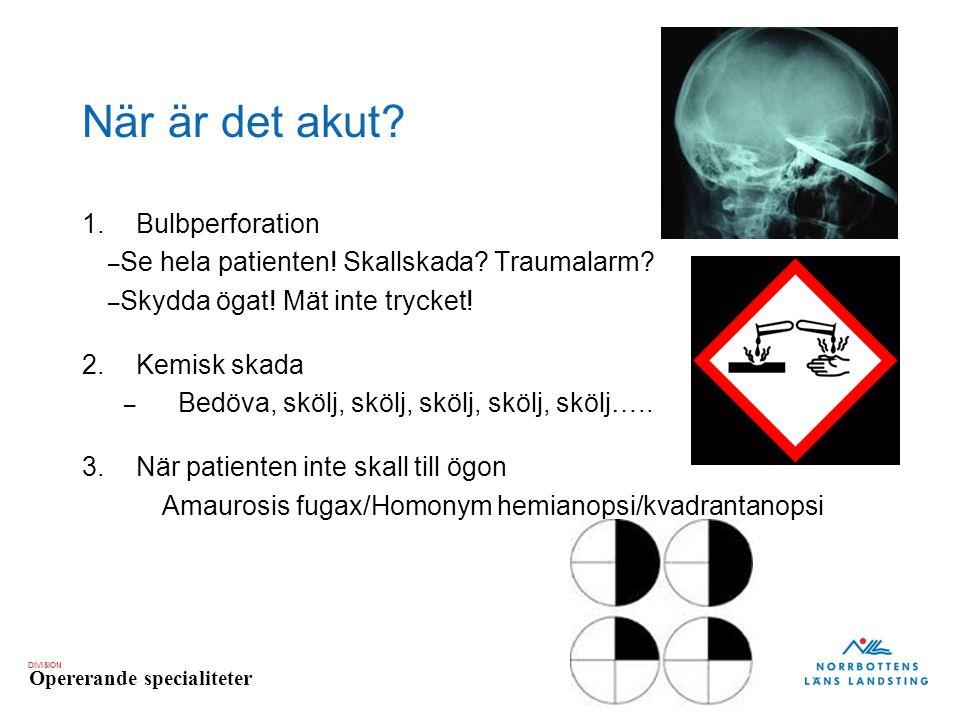 DIVISION Opererande specialiteter När är det akut? 1.Bulbperforation – Se hela patienten! Skallskada? Traumalarm? – Skydda ögat! Mät inte trycket! 2.K