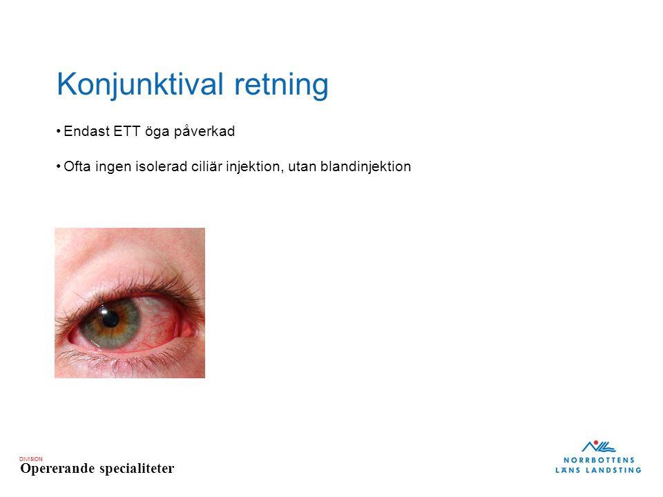 DIVISION Opererande specialiteter Konjunktival retning Endast ETT öga påverkad Ofta ingen isolerad ciliär injektion, utan blandinjektion