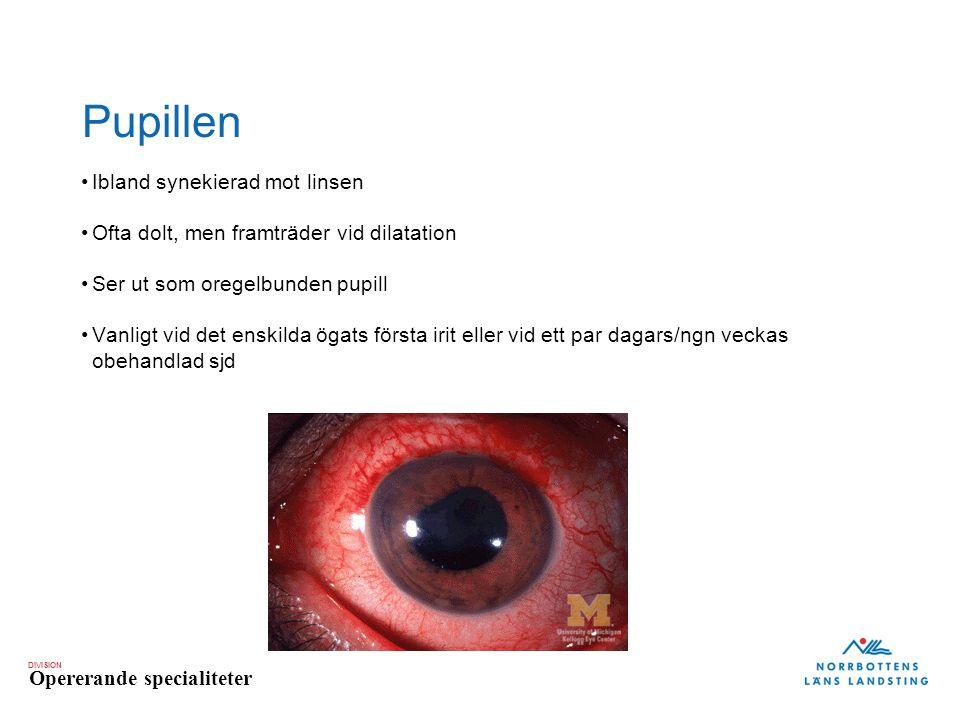 DIVISION Opererande specialiteter Pupillen Ibland synekierad mot linsen Ofta dolt, men framträder vid dilatation Ser ut som oregelbunden pupill Vanlig