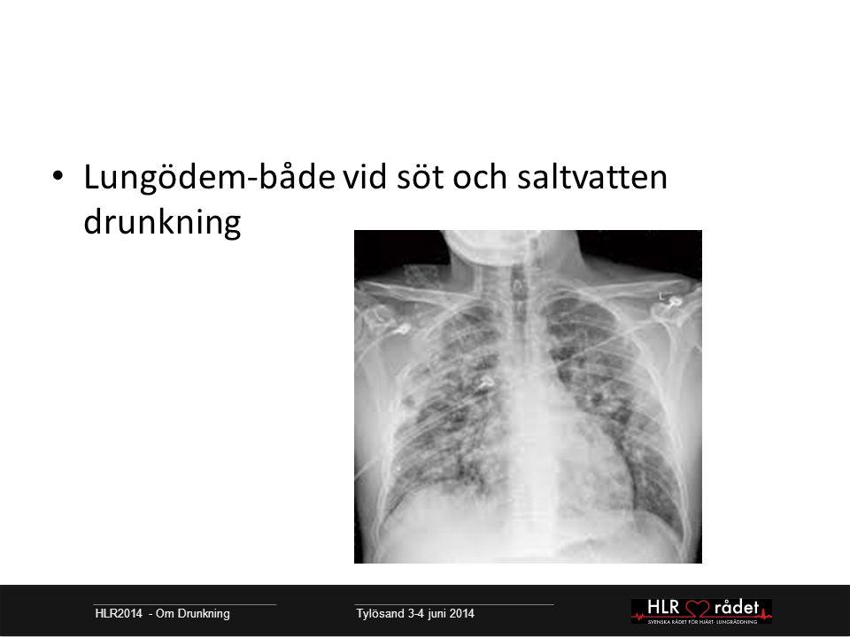 HLR2014 - Om Drunkning Tylösand 3-4 juni 2014 Lungödem-både vid söt och saltvatten drunkning