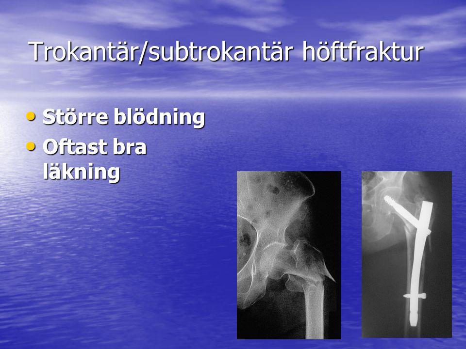 Trokantär/subtrokantär höftfraktur Större blödning Större blödning Oftast bra läkning Oftast bra läkning