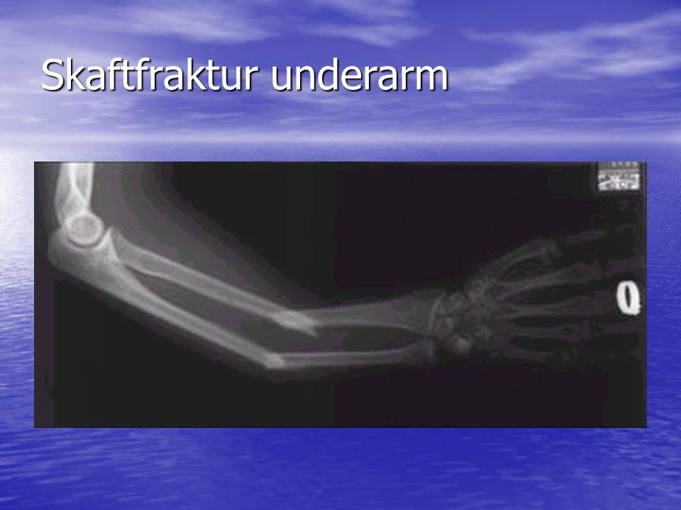 Röntgen, höftartros