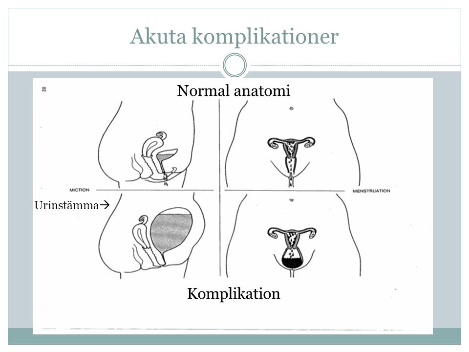 Akuta komplikationer Normal anatomi Urinstämma  Komplikation