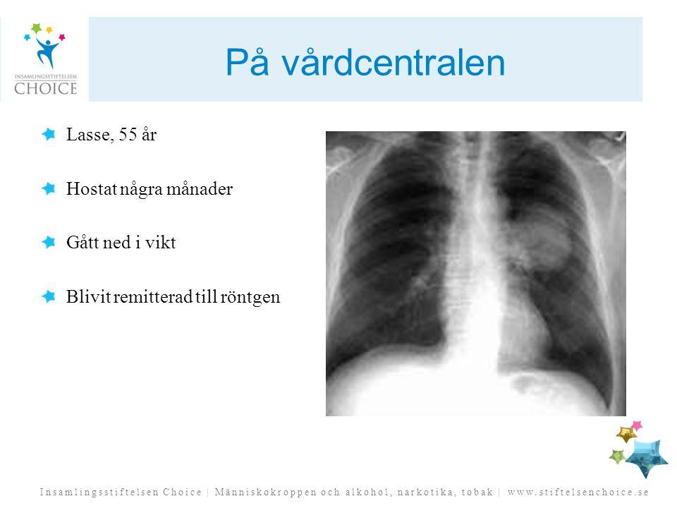 På vårdcentralen Lasse, 55 år Hostat några månader Gått ned i vikt Blivit remitterad till röntgen