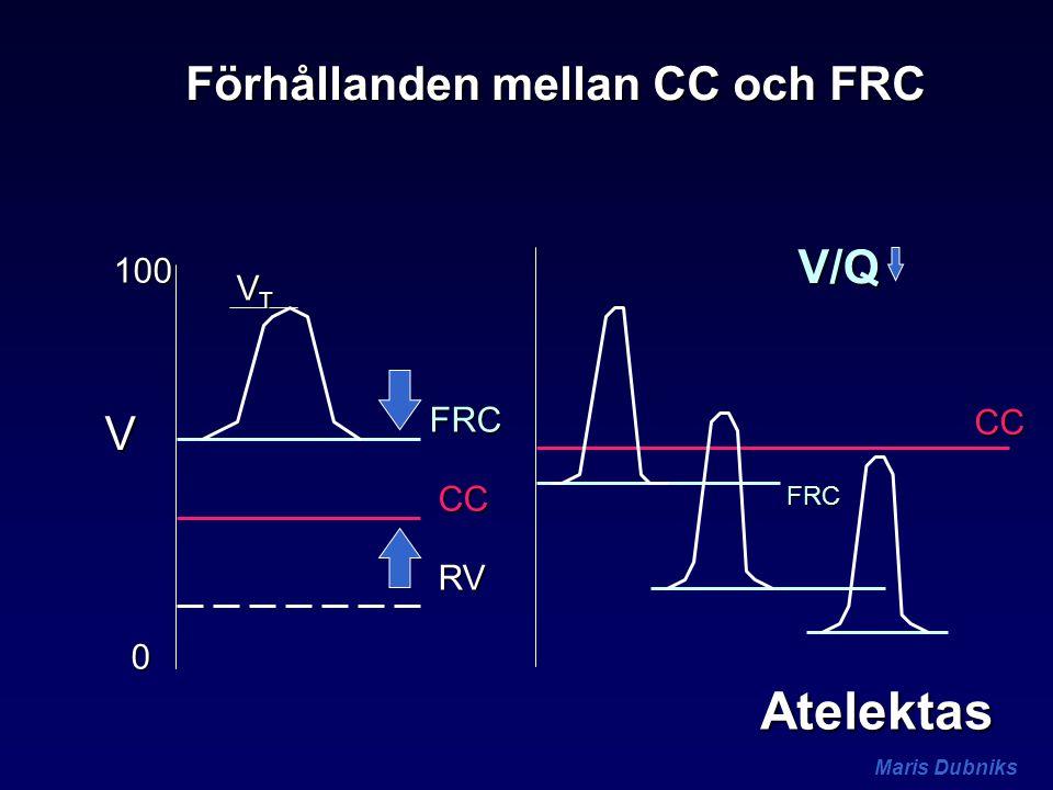 Maris Dubniks FRC 0 100 V CC RV VTVTVTVT FRC CC V/Q Förhållanden mellan CC och FRC Atelektas