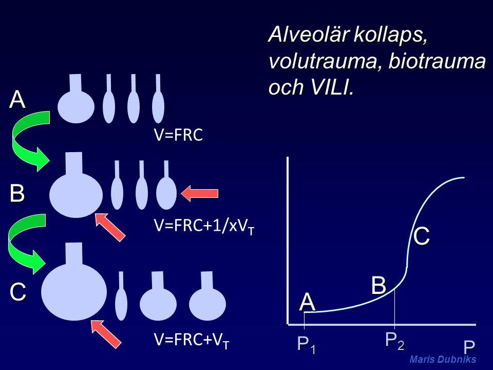 V=FRC P A B C A B C P1P1P1P1 P2P2P2P2 V=FRC+1/xV T V=FRC+V T Alveolär kollaps, volutrauma, biotrauma och VILI.