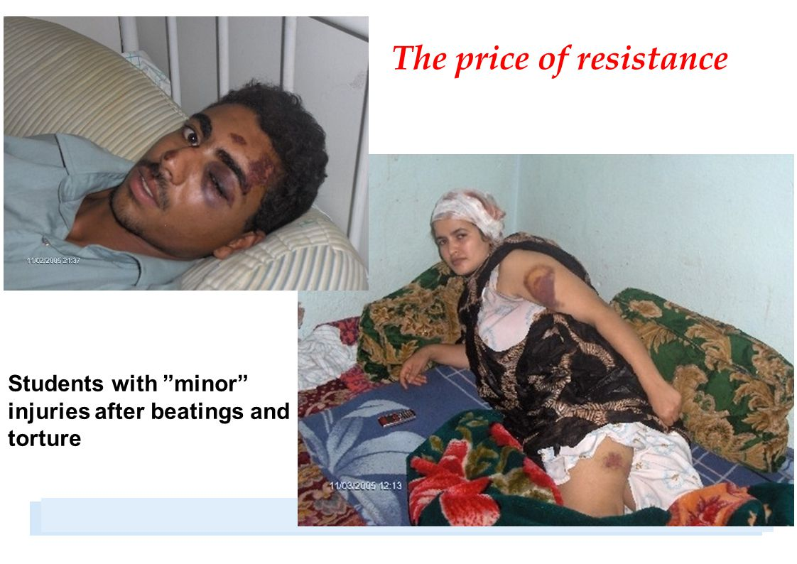 Students with minor injuries after beatings and torture The price of resistance