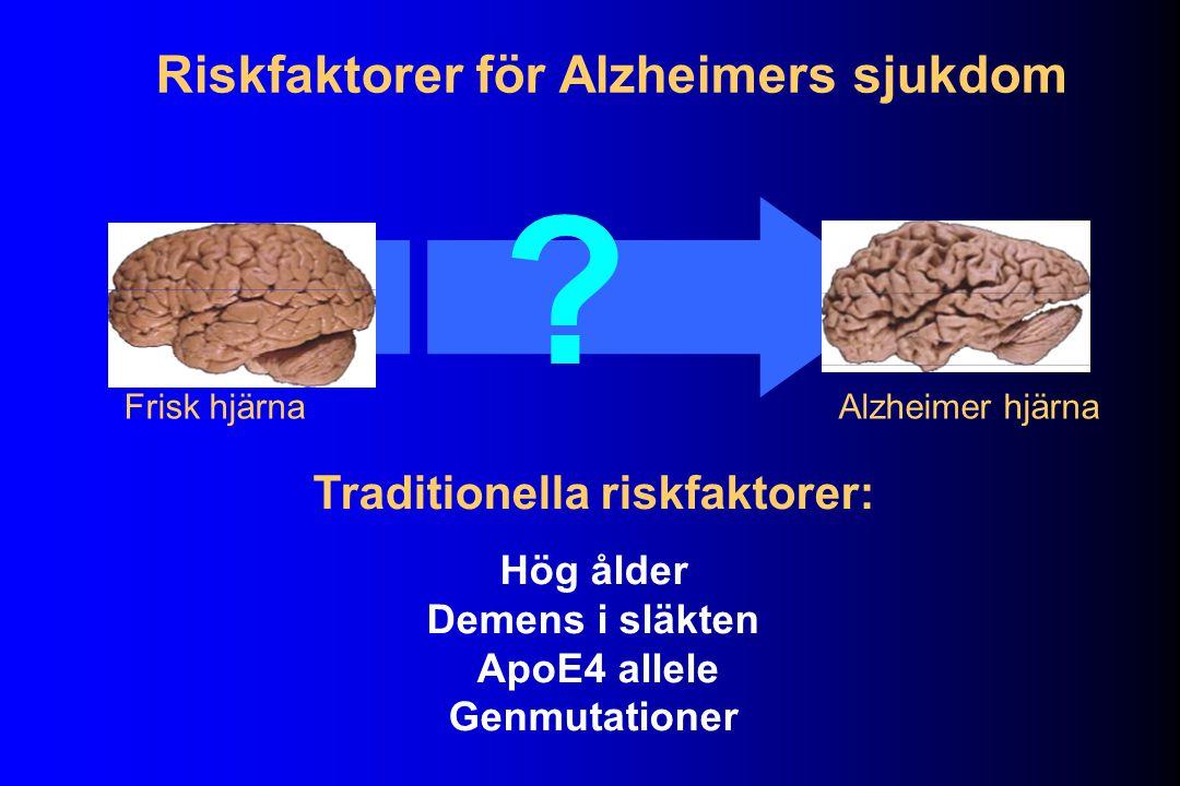 Frisk hjärnaAlzheimer hjärna .