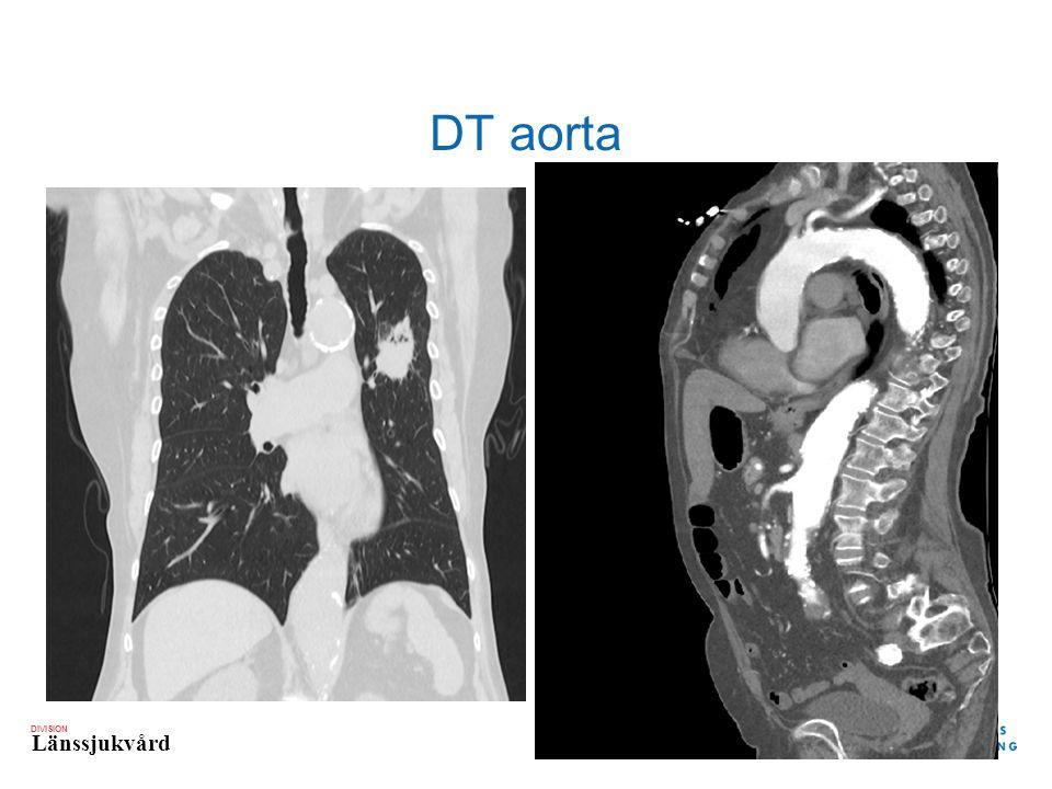 DIVISION Länssjukvård DT aorta