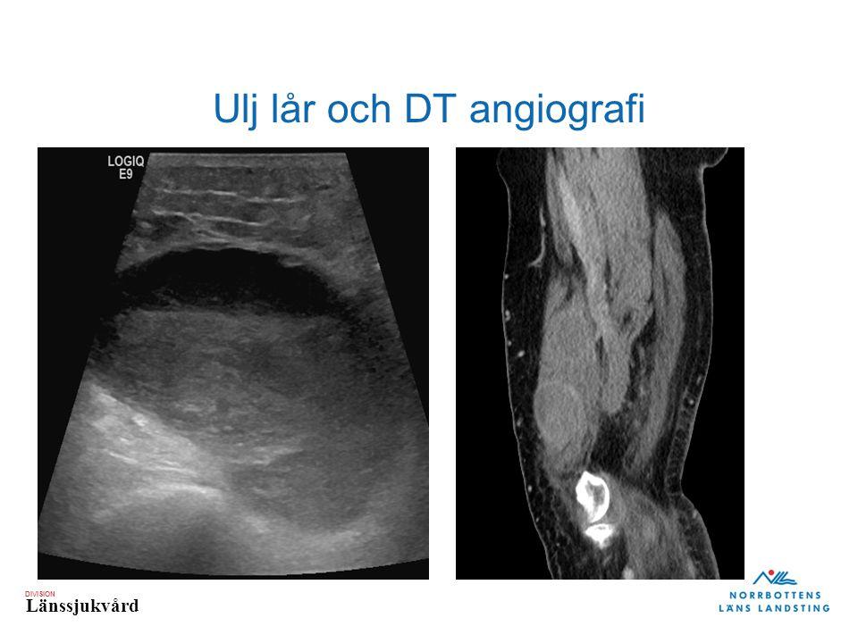 DIVISION Länssjukvård Ulj lår och DT angiografi