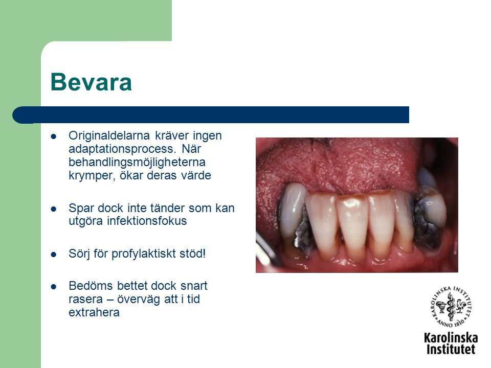Bevara Originaldelarna kräver ingen adaptationsprocess. När behandlingsmöjligheterna krymper, ökar deras värde Spar dock inte tänder som kan utgöra in