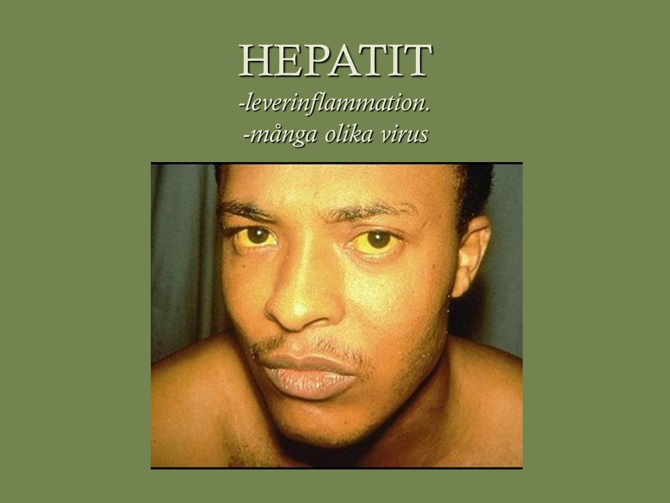 Hepatit A/E  A: picornavirus.ssRNA, utan hölje.