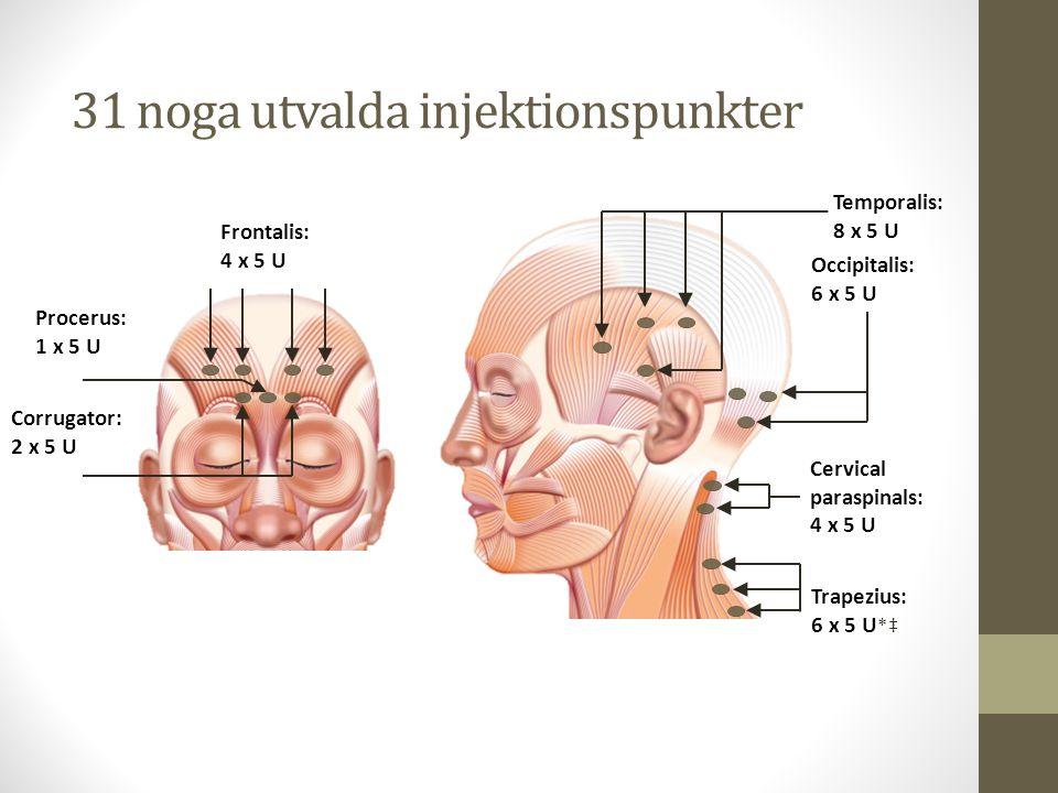 31 noga utvalda injektionspunkter Temporalis: 8 x 5 U Occipitalis: 6 x 5 U Cervical paraspinals: 4 x 5 U Trapezius: 6 x 5 U *‡ Frontalis: 4 x 5 U Corr