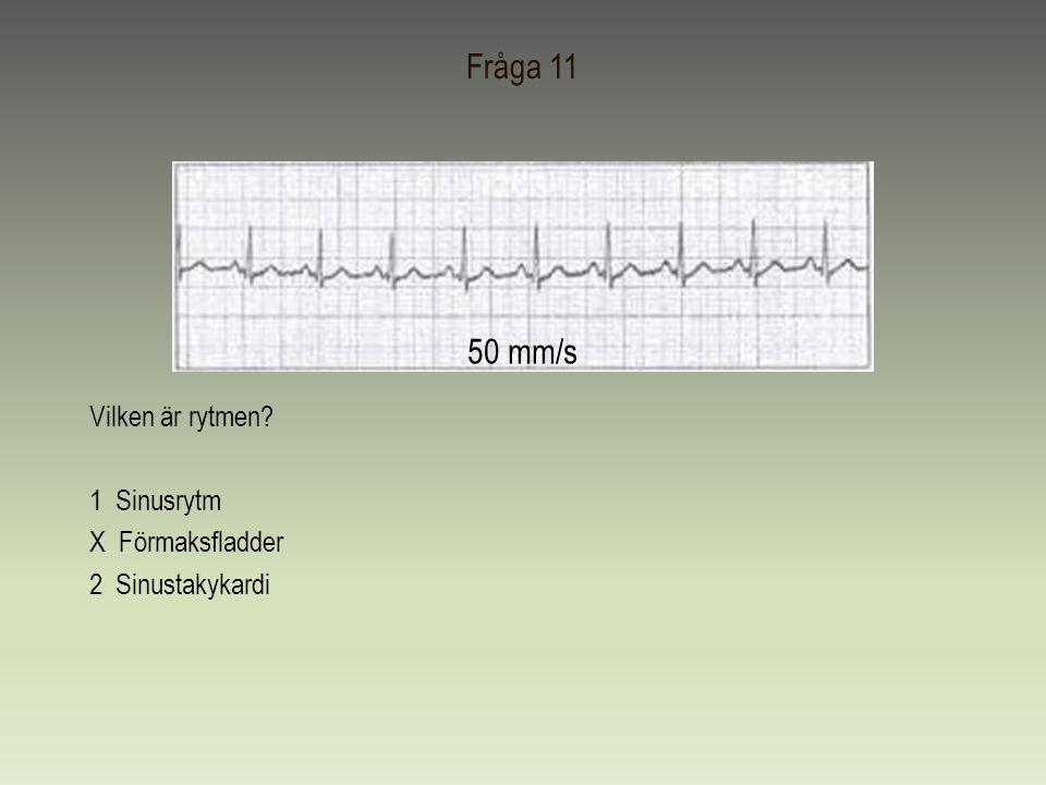 Fråga 11 Vilken är rytmen? 1 Sinusrytm X Förmaksfladder 2 Sinustakykardi 50 mm/s