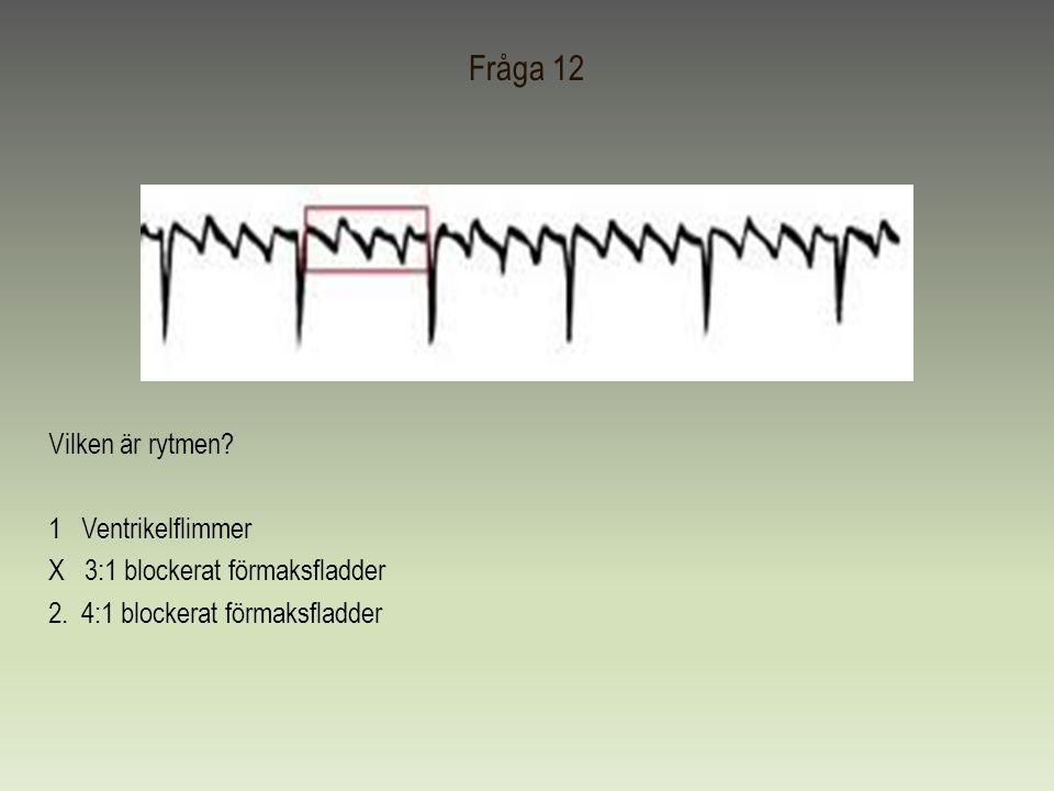 Fråga 12 Vilken är rytmen? 1 Ventrikelflimmer X 3:1 blockerat förmaksfladder 2. 4:1 blockerat förmaksfladder