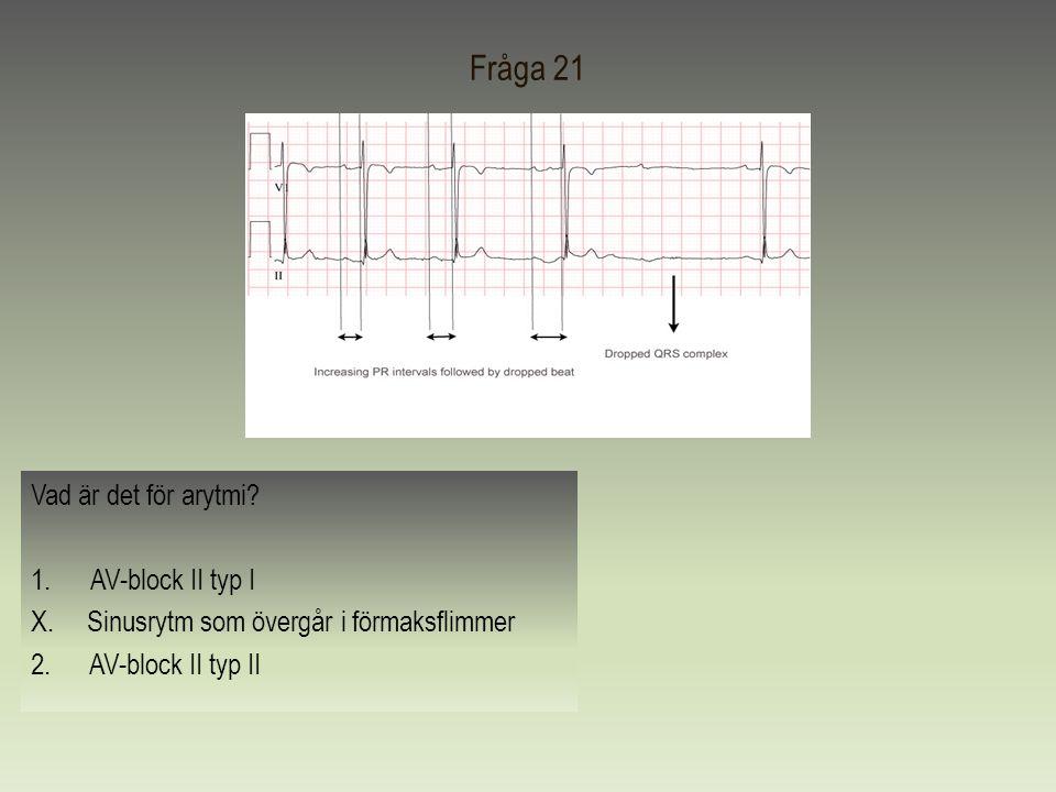 Fråga 21 Vad är det för arytmi? 1.AV-block II typ I X. Sinusrytm som övergår i förmaksflimmer 2. AV-block II typ II