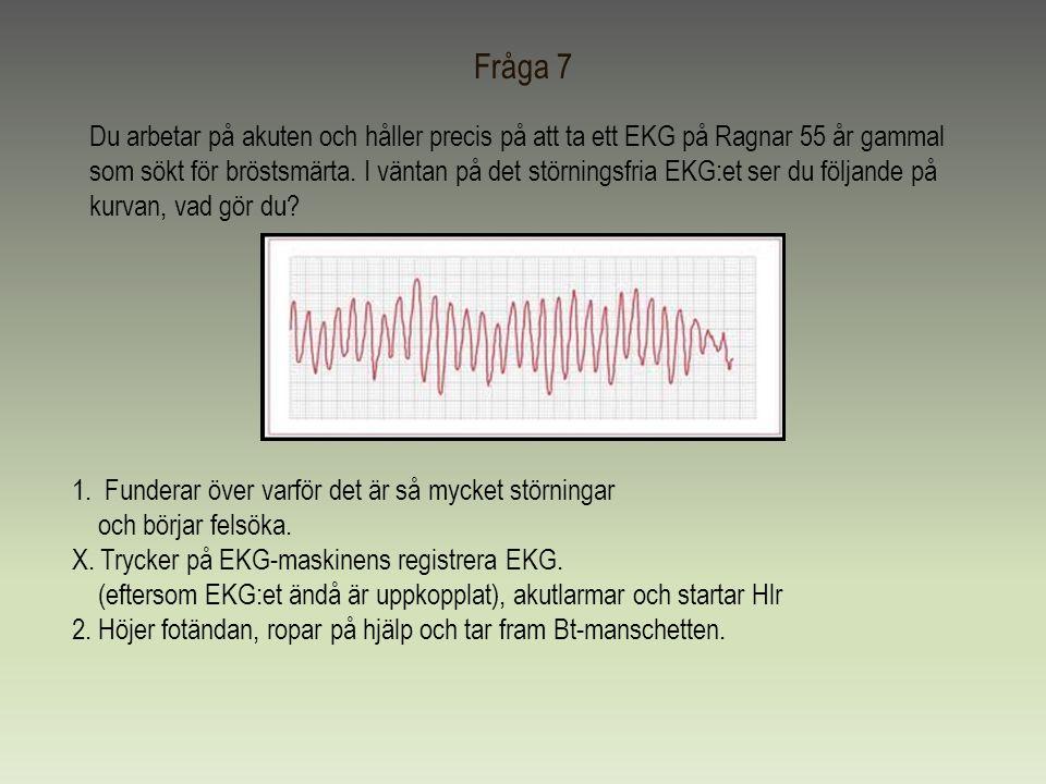 Fråga 7 Du arbetar på akuten och håller precis på att ta ett EKG på Ragnar 55 år gammal som sökt för bröstsmärta. I väntan på det störningsfria EKG:et