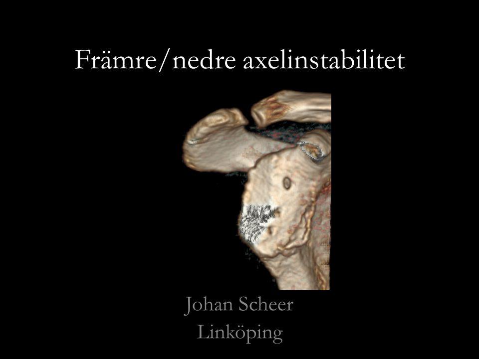 Främre/nedre axelinstabilitet Johan Scheer Linköping