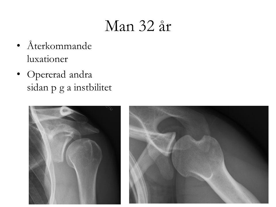 Opereras med artroskopisk Bankart + remplissage
