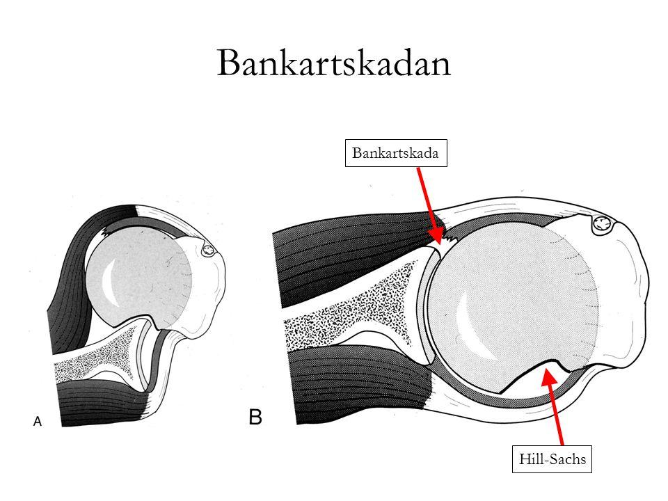 Bankartskadan Hill-Sachs Bankartskada