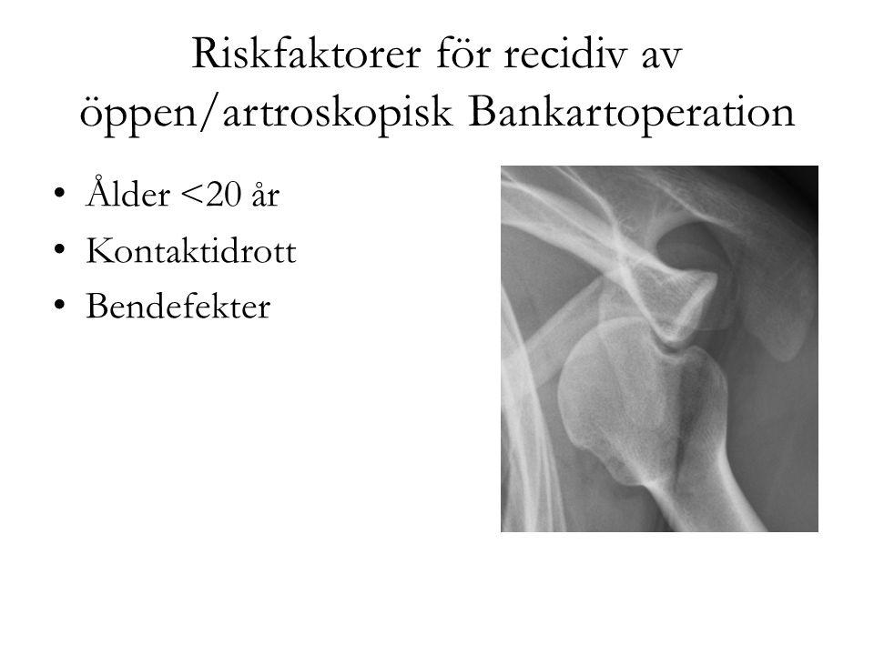Riskfaktorer för recidiv av öppen/artroskopisk Bankartoperation Ålder <20 år Kontaktidrott Bendefekter
