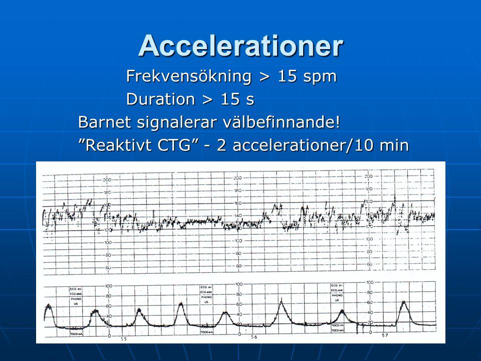 """Y Vladic Stjernholm Accelerationer Frekvensökning > 15 spm Duration > 15 s Barnet signalerar välbefinnande! """"Reaktivt CTG"""" - 2 accelerationer/10 min"""