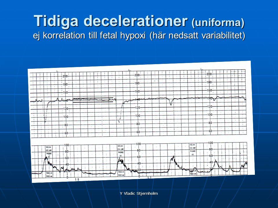 Y Vladic Stjernholm Tidiga decelerationer (uniforma) ej korrelation till fetal hypoxi (här nedsatt variabilitet)