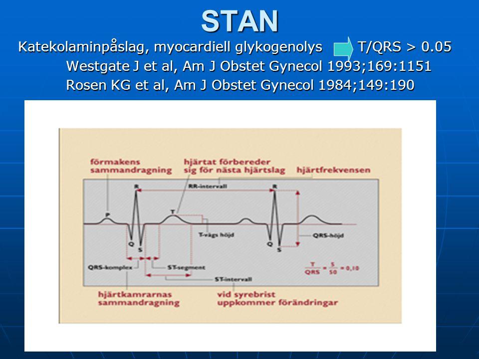 Y Vladic StjernholmSTAN Katekolaminpåslag, myocardiell glykogenolys T/QRS > 0.05 Westgate J et al, Am J Obstet Gynecol 1993;169:1151 Rosen KG et al, A