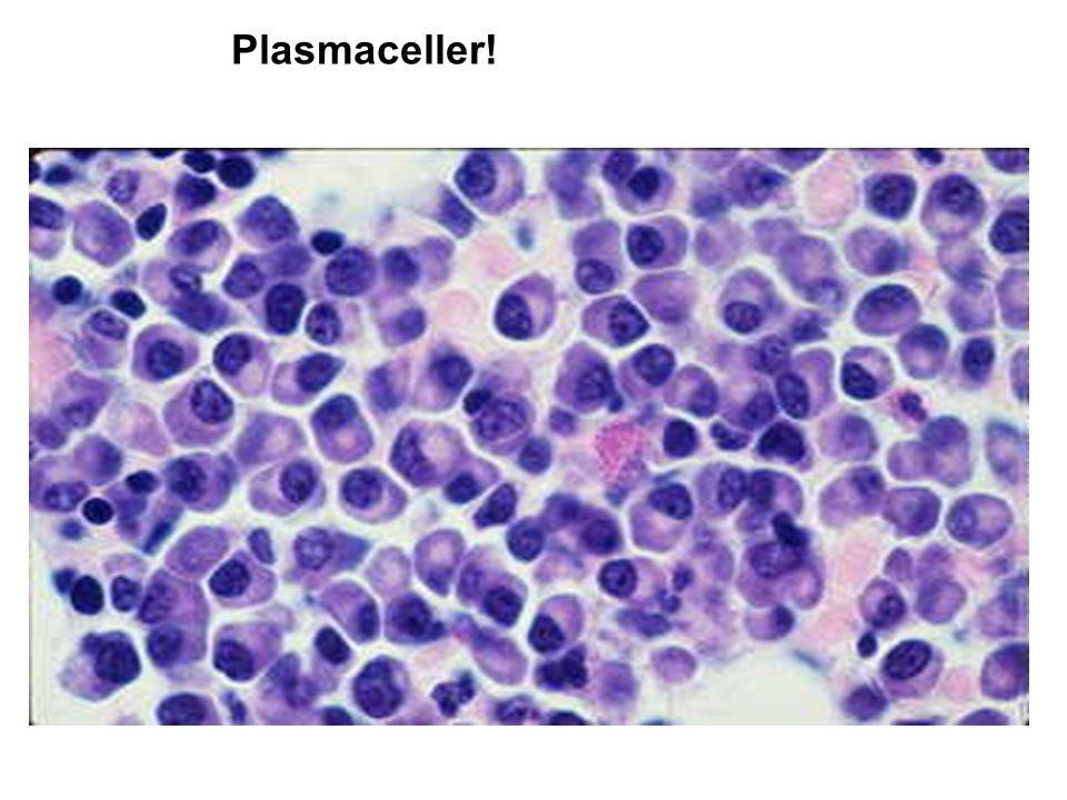 Plasmaceller!